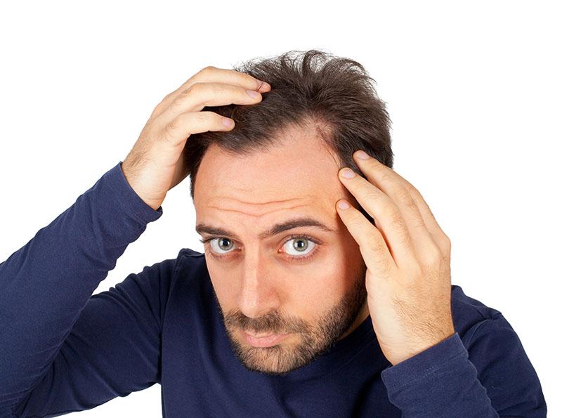 Queda de cabelo o que causa esse problema